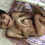 Atrophied Child in Romania