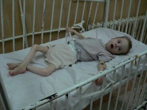 Child in Serbian Institution tied to Crib