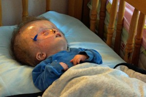 hydrocephalus-infant home2013